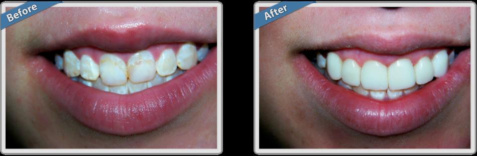 Что такое фотополимерная реставрация зубов