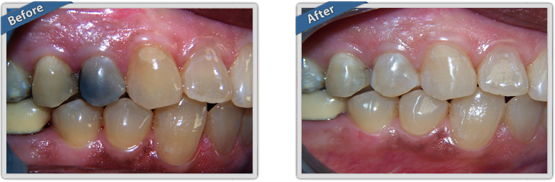 BEFORE & AFTER - Galstan & Ward Family & Cosmetic Dentistry